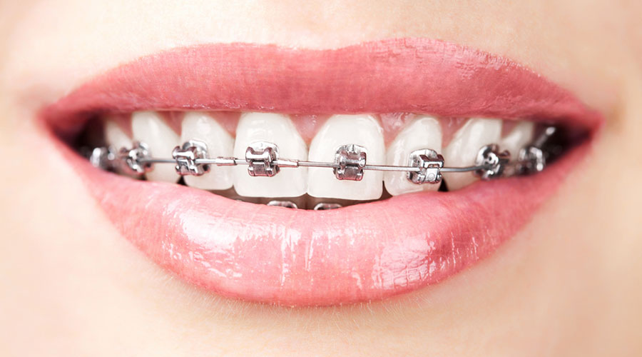Traditional Metal Braces on a patient's teeth