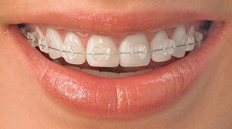 Clear braces on a patient